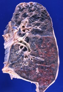 Lung with emphysema, caused by smoking Photo credit: Yale Rosen